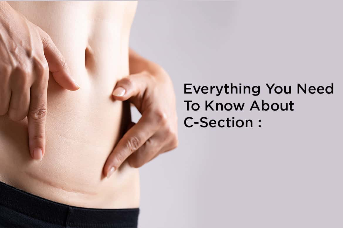 C-Section Everything you need to know
