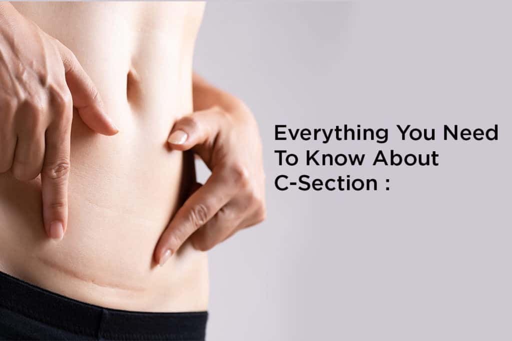 C-Section: Everything you need to know